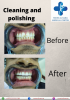 Tooth cleaning cost in dubai